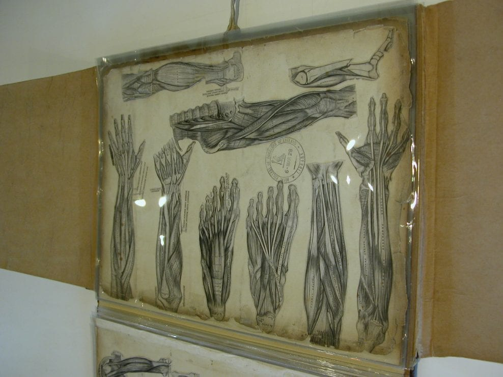 Conservation and rehousing of a group of bound medical drawings